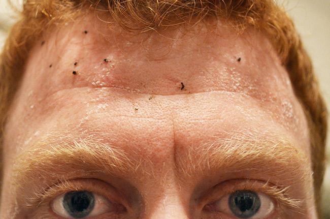 David with bugs