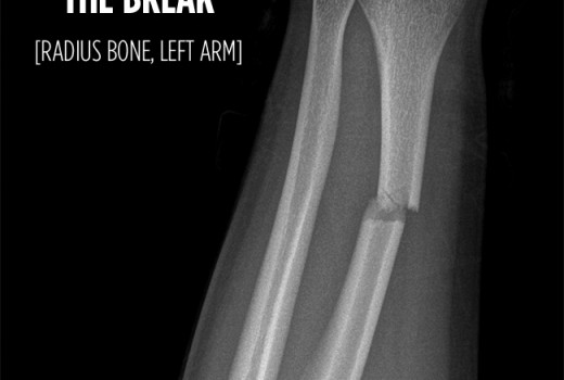 Broken radius bone, left arm