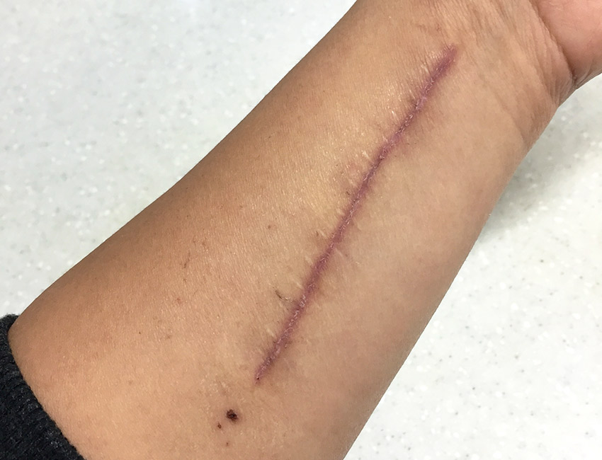 Arm scar two weeks post surgery